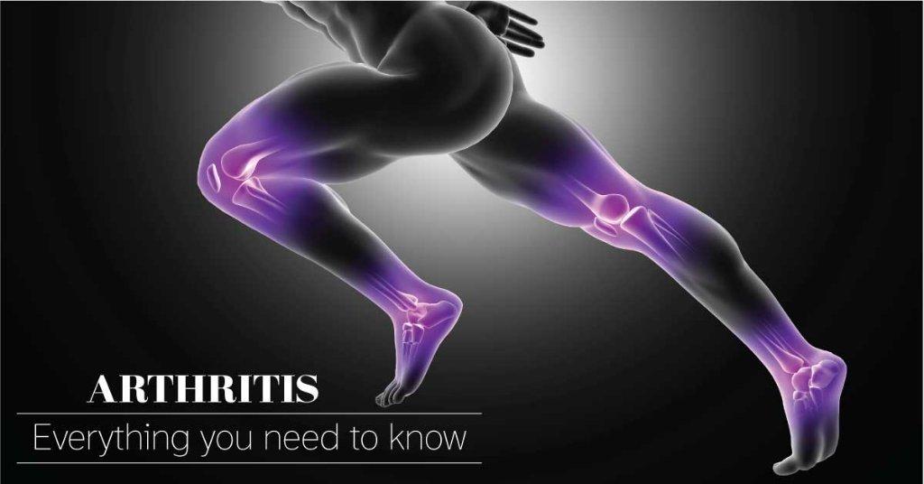 Arthritis-Pillsbills.com