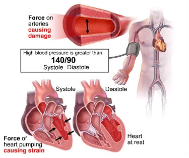 why high blood pressure cause atheroscl
